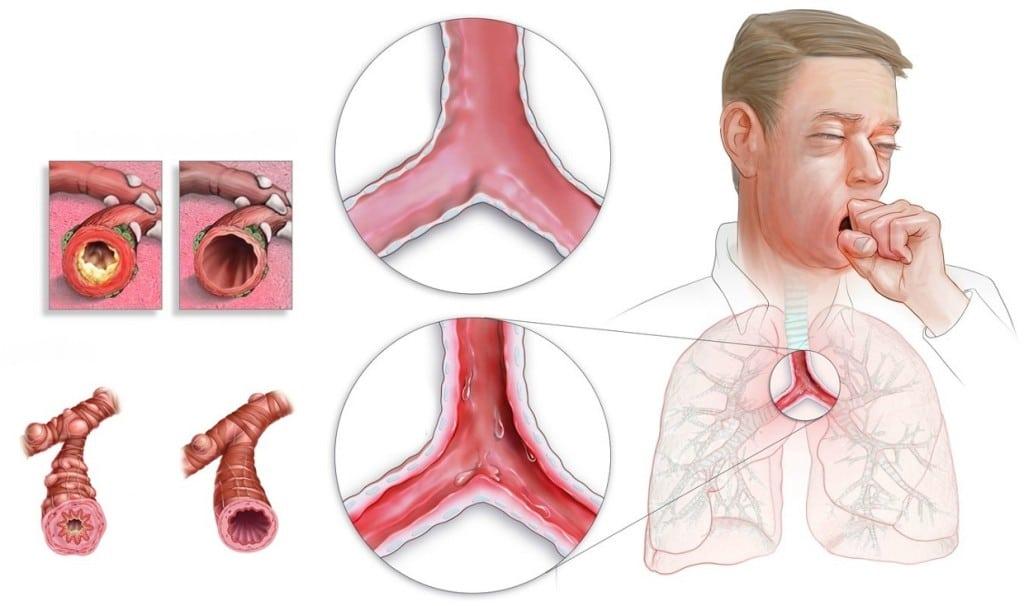 Remedios Caseiros Para Tratar Bronquite