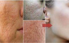 As 9 Receitas Caseiras Para Fechar os Poros Dilatados