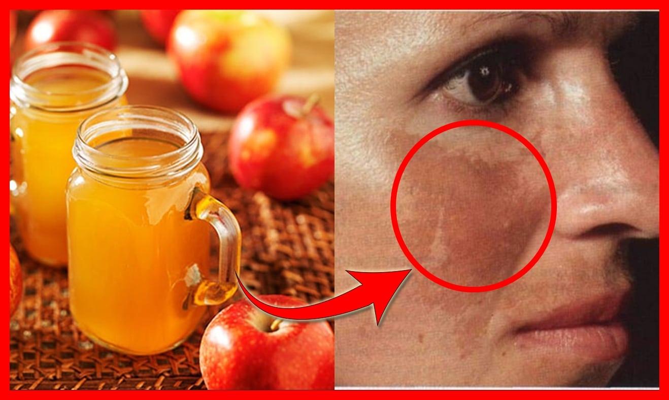 Remedios Caseiros Para Remover Hiperpigmentaçao