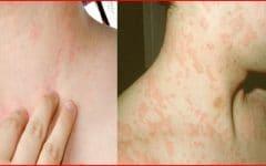 Os 10 Remédios Caseiros Para Tratar as Alergias