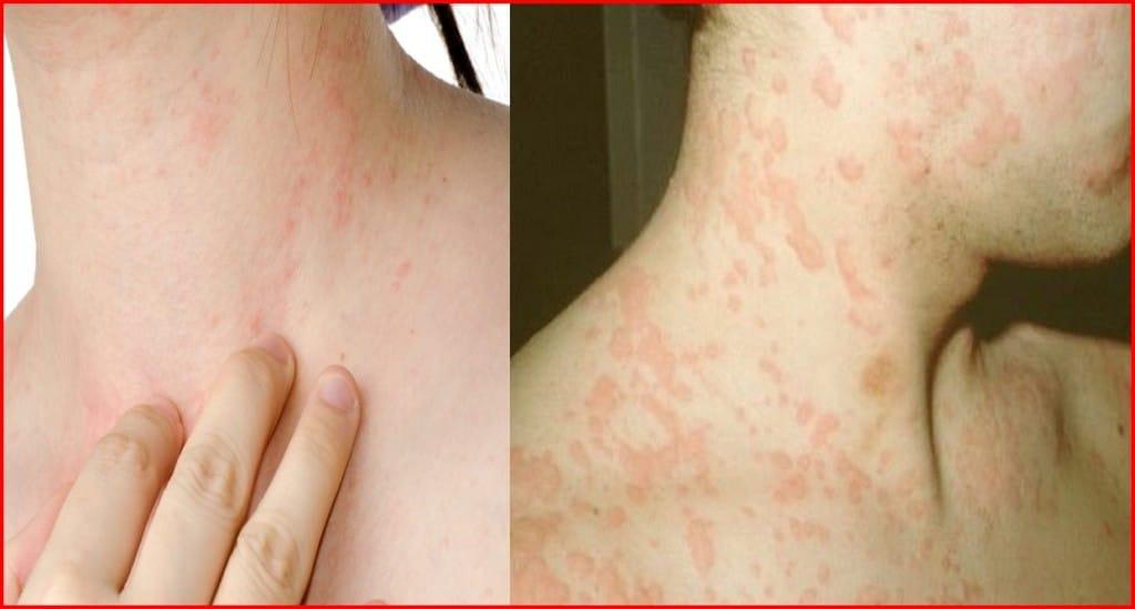 Remédios Caseiros Para Tratar as Alergias