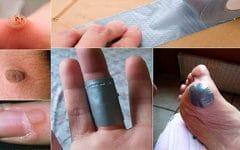 Os 8 Remédios Caseiros Para Acabar Com as Verrugas