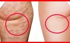Os 10 Remédios Caseiros Para Eliminar Celulite!