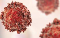 Como Combater o Câncer Com Apenas 1 Ingrediente