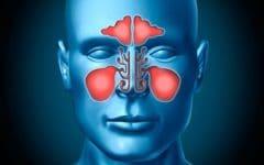 Os 10 Remédios Caseiros Para Tratar a Sinusite