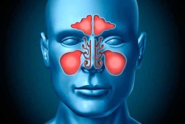Remédios Caseiros Para Tratar a Sinusite