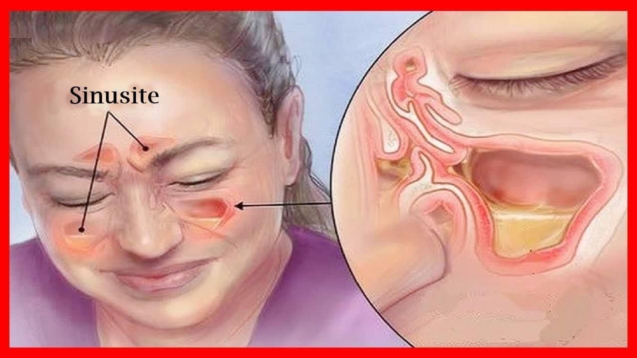 Remédios Caseiros Para Eliminar Sinusite