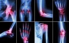 Os 15 Alimentos Saudáveis Para Artrite