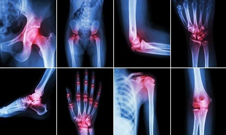 Alimentos Saudaveis Para Artrite