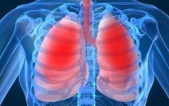 Os 11 Remédios Caseiros Para Bronquite