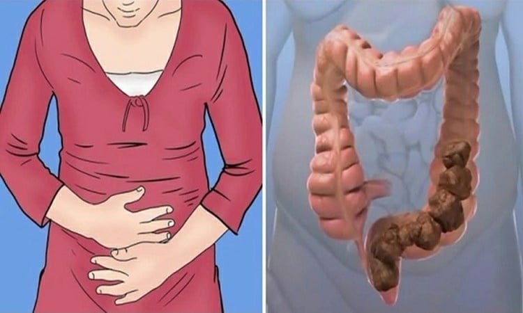 Alimentos Saudaveis Para Constipaçao