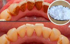 5 Truque Para Remover a Placa Bacteriana em 5 minutos!