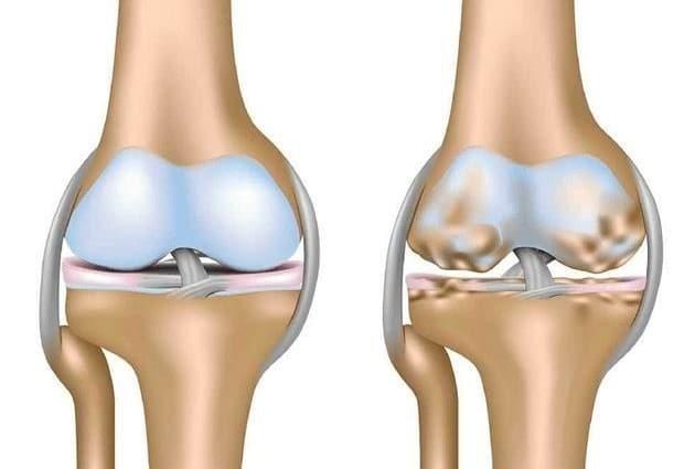 tratamento para artrite