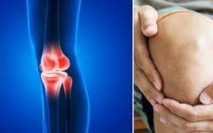 As8 Receitas de Tratamentos Caseiros Para Aliviar a Artrite