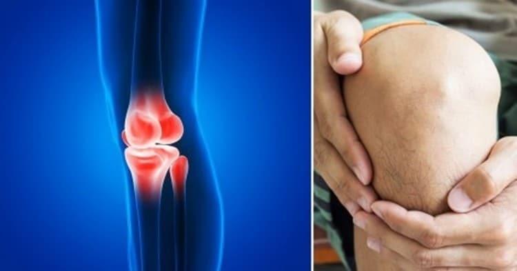 tratamentos para artrite