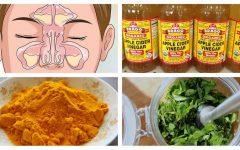 Como Tratar a Sinusite de Maneira Natural!