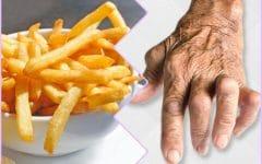 9 Alimentos Que Você Deve Evitar se Tiver Artrite!