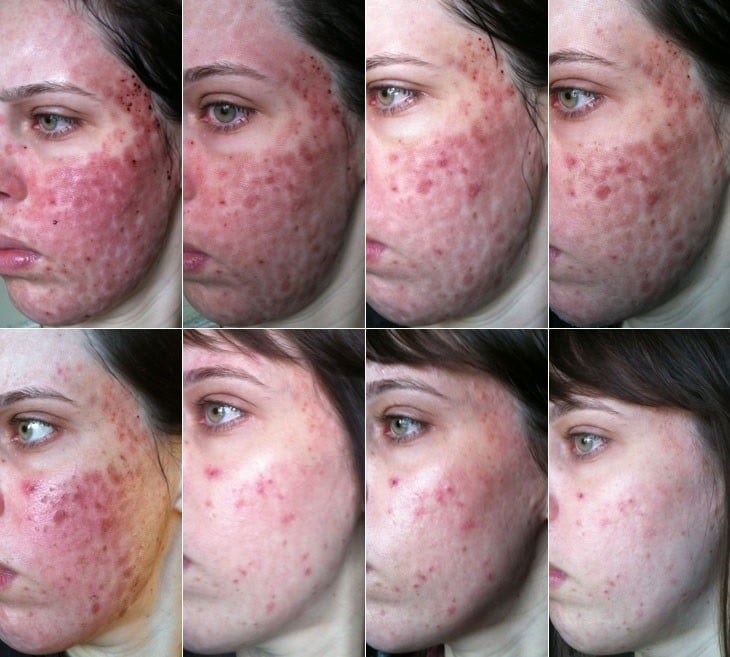 Como Eliminar as Manchas de Acne