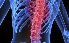 Remédio Caseiro Para Tratar Osteoporose