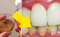 3 Dicas Caseiras Para Remover o Tártaro dos Dentes!