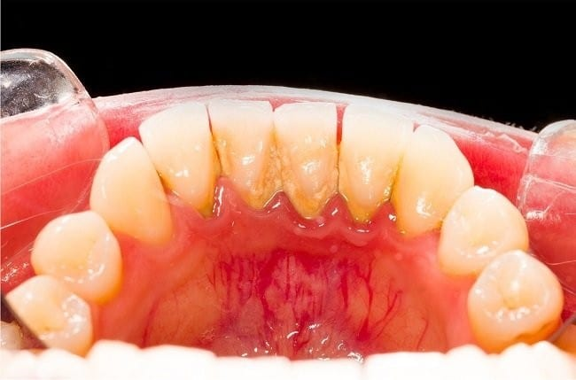 tartaro dos dentes