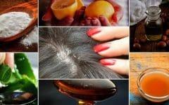 9 Remédios Caseiros Para se Livrar da Caspa Naturalmente!