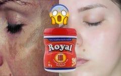 Como Usar Pó Royal Para Remover Manchas da Pele!