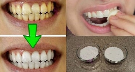 Clarear os Dentes em Casa