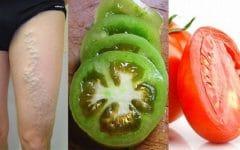 Veja Como Curar Varizes Usando Apenas Tomate!