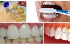 Como Eliminar o Tártaro, Placas e Sangramento do Dente em 1 minutos!