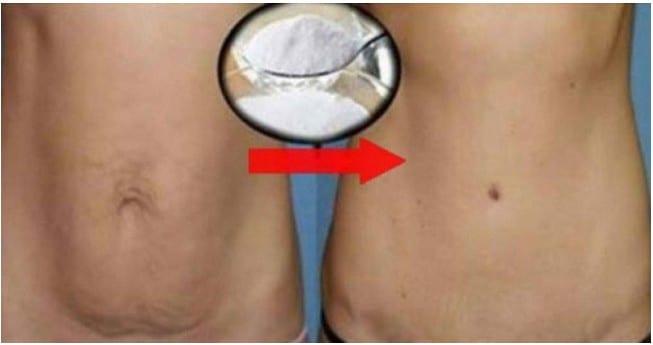 remover gordura da barriga com bicarbonato de sodio